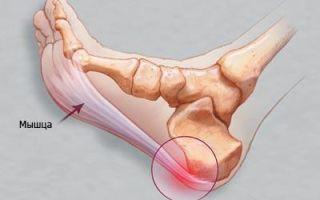 Как лечить пяточную шпору, и какие методы эффективны?