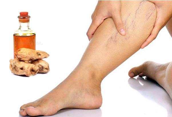 имбирное масло при варикозе