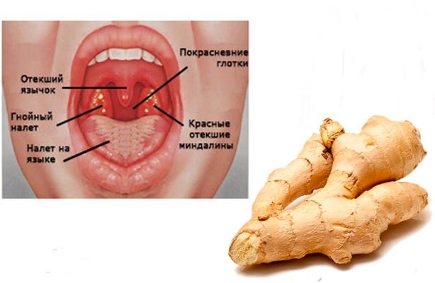 симптомы ангины и корень имбиря