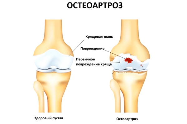 Изображение - Имбирный компресс на суставы osteoartrozz