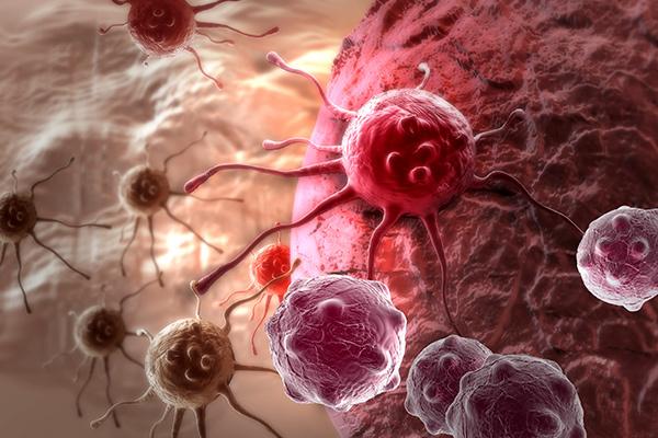 опухоли в организме