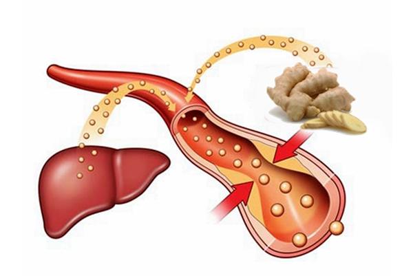 рименение имбиря от холестерина